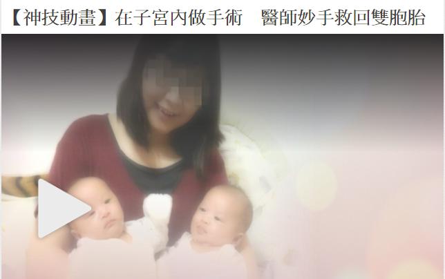 在子宮內做手術 醫師妙手救回雙胞胎